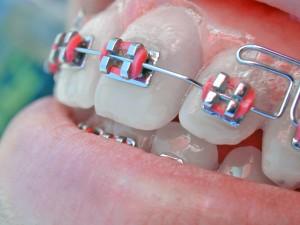 slotjesbeugel TOP Orthodontie